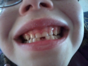 first tooth